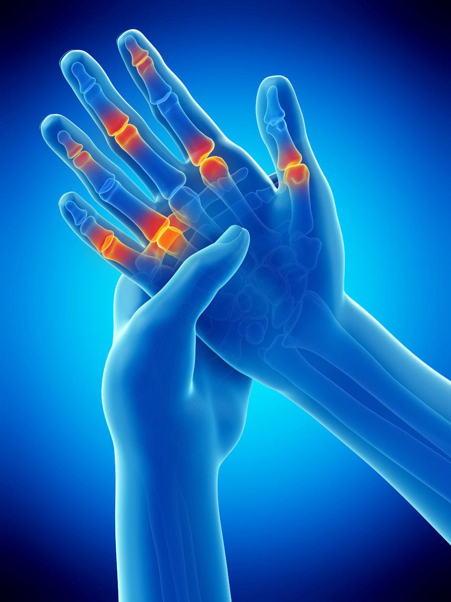 dolor articulaciones manos