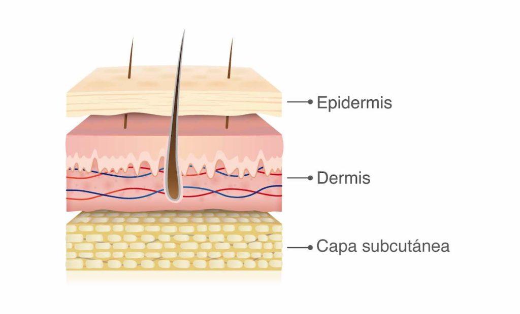 rozaduras en la piel